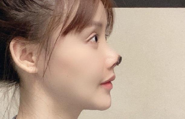 Chinese star Gao Liu shares photos of 'nightmare' nose surgery