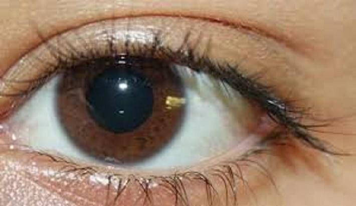 Coronavirus: Severe COVID-19 can cause serious eye abnormalities, claim researchers