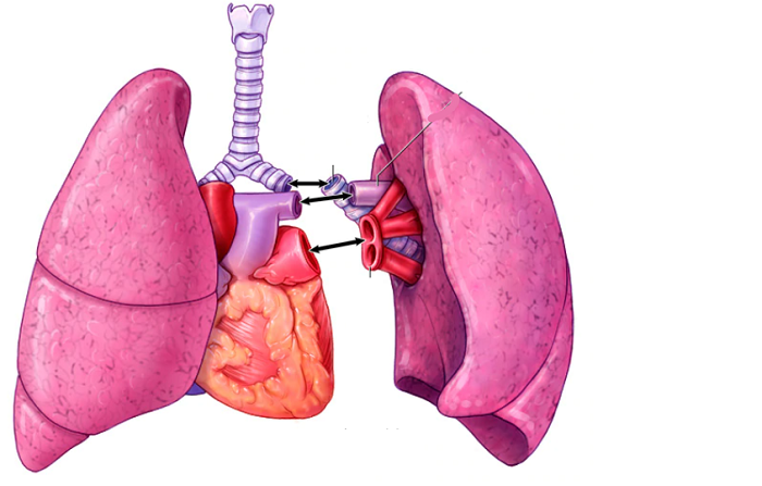 Japanese doctors perform world's first living donor lung transplant to a Covid-19 patient