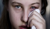 Pink eye or conjunctivitis could be a symptom of COVID 19