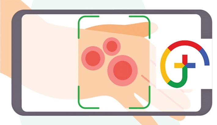 Google AI tool for dermatology