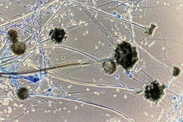 Bangladesh reports first suspected black fungus death