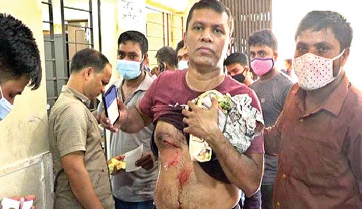 13 hurt in armed clash in Ctg