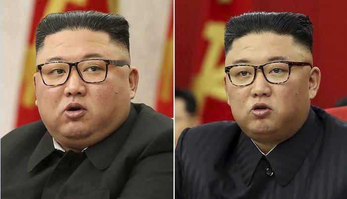 N Korea's Kim looks much thinner, causing health speculation