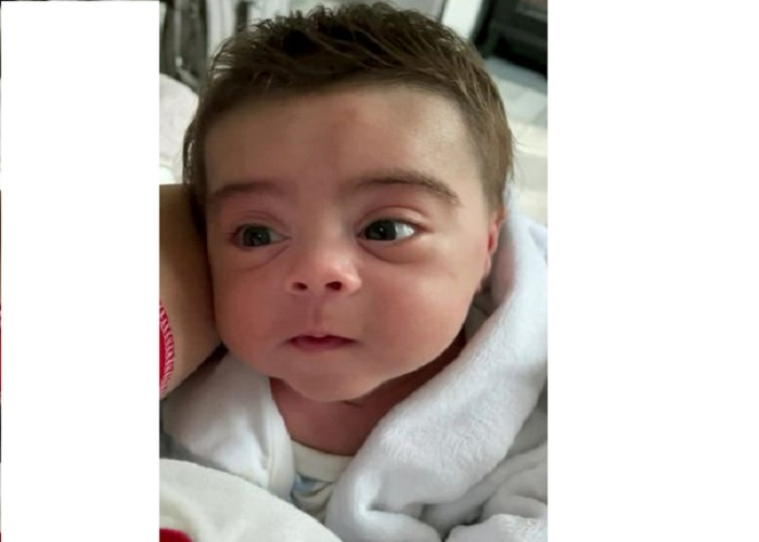 Medicine side effect gives premature newborn baby luscious full head of hair