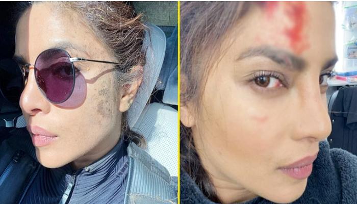 Priyanka Chopra gets hurt on the sets of Citadel