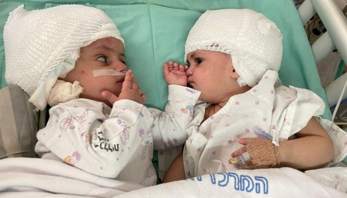 Twins conjoined at head separated after rare surgery in Israel