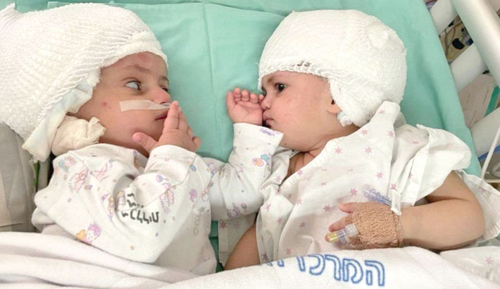 Twins conjoined at head separated in rare surgery