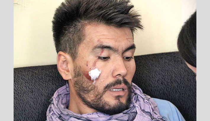Taliban severely beat journalists