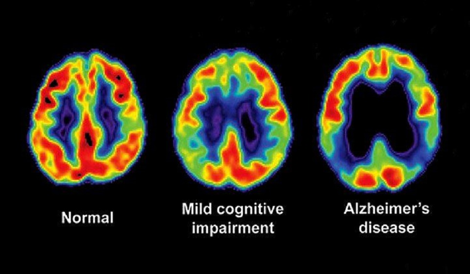 Early Alzheimer's diagnosis: Progress and pitfalls
