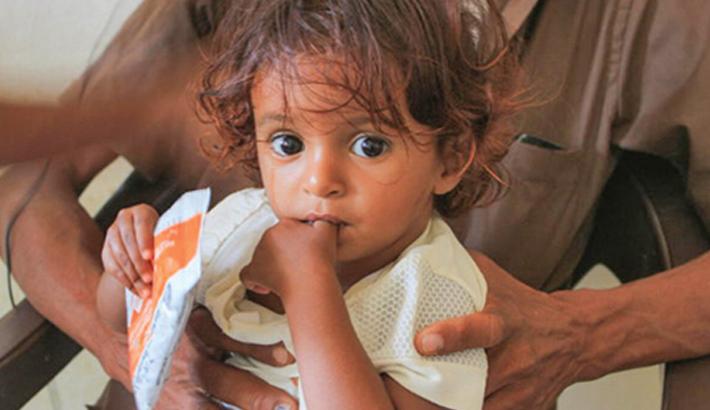 Millions face hunger in Yemen: UN