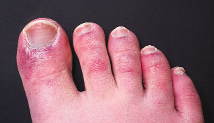 'Covid toe' may be side-effect of immune response: Study
