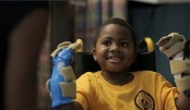 First child double hand transplant announced in US